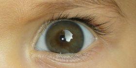Мързеливо око или амблиопия – симптоми и лечение